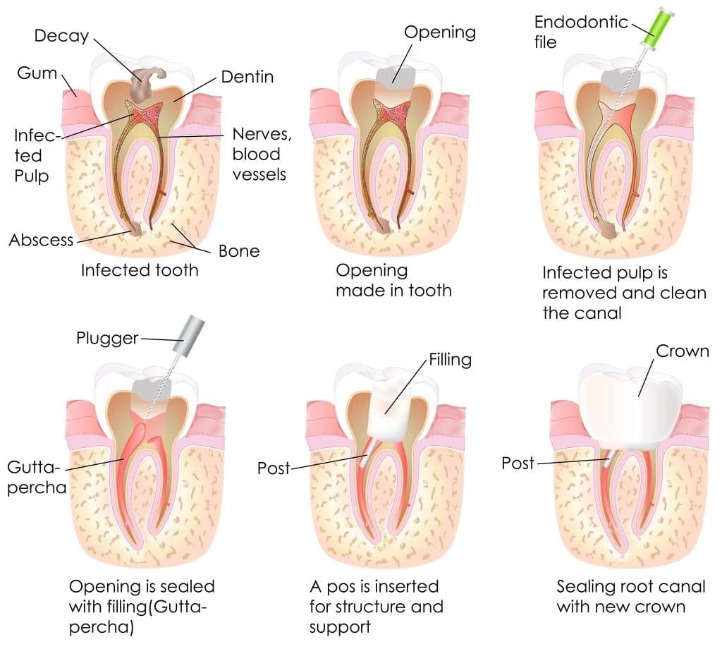 Root Canal in Lara Victoria | Best Root Canal Therapy in Lara Victoria